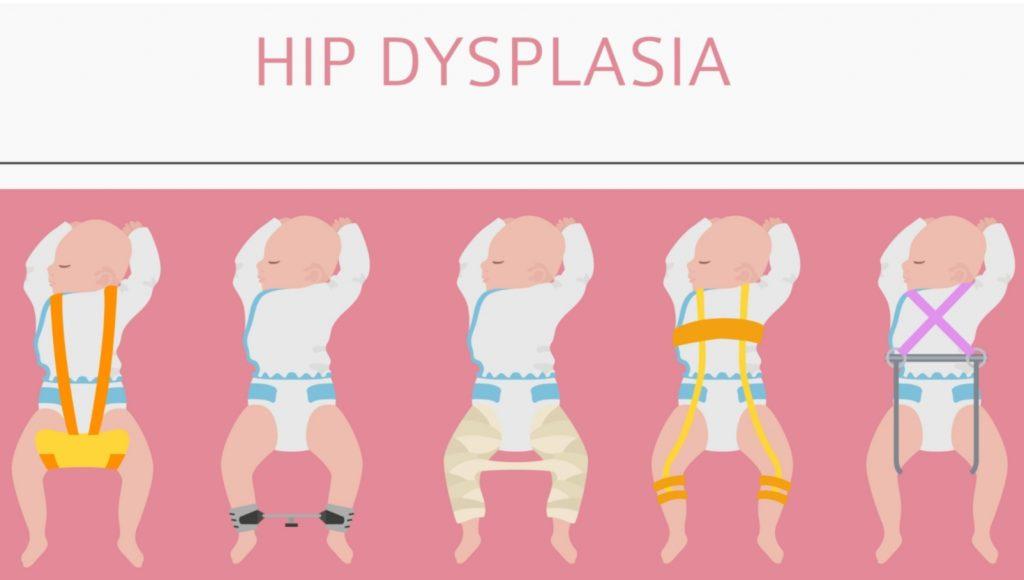 Hip-Dysplasia-Infants-Image-1