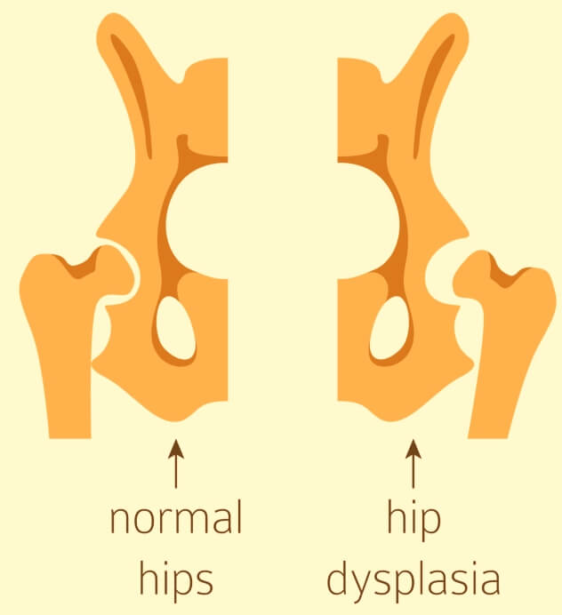 Hip Dysplasia Infants-Normal-Hips-Vs-Hip-Dysplasia