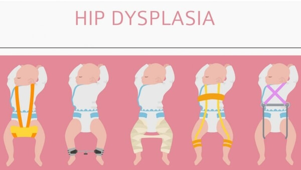 Infant-Hip-Dysplasia