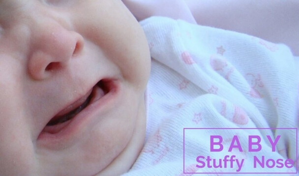 baby-stuffy-nose